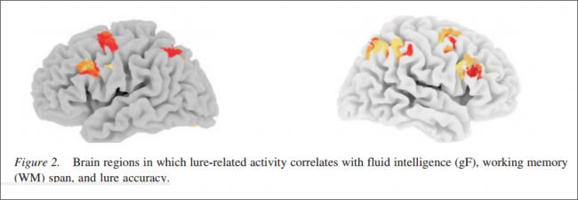 Dual back fmri study